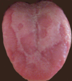 Typical Geographic Tongue