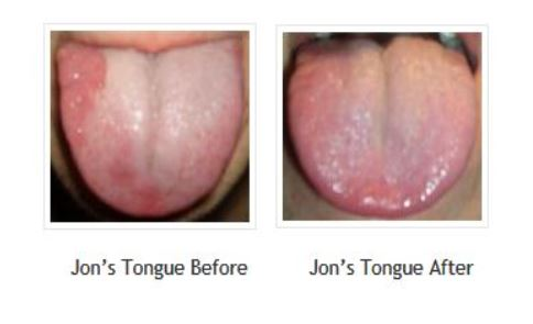 Jon's Geographic Tongue